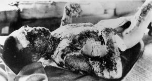 Victim of the Nagasaki bombing